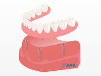 マグネットアタッチメント義歯