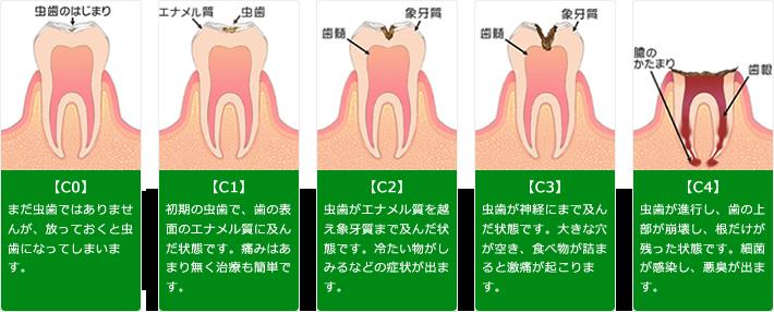 虫歯の進行具合について